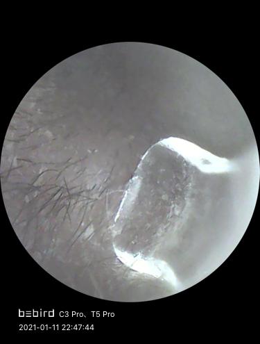 入口付近のウブ毛と耳垢